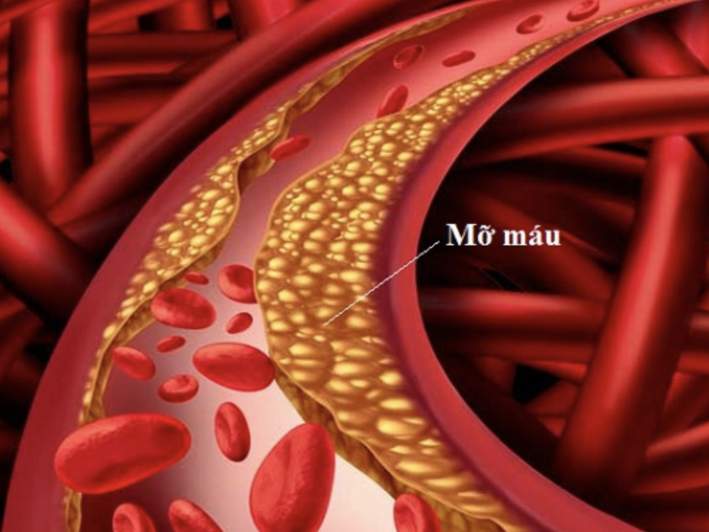 Chỉ số máu nhiễm mỡ giúp phát hiện và chẩn đoán tình trạng bệnh
