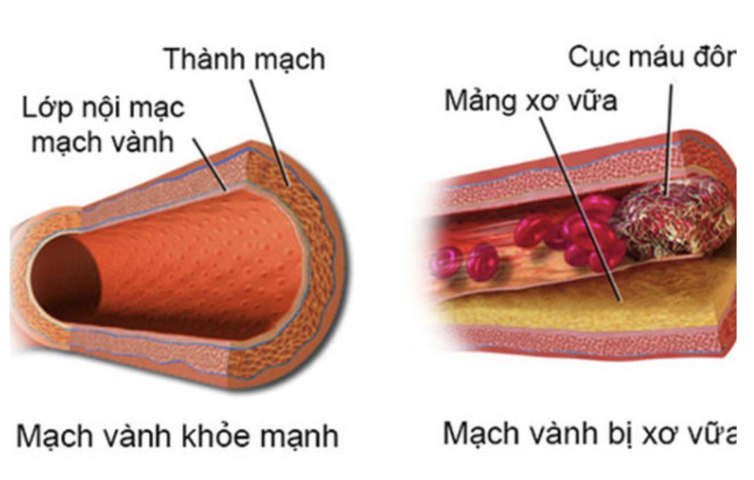 Cholesterol cao gây xơ vữa động mạch