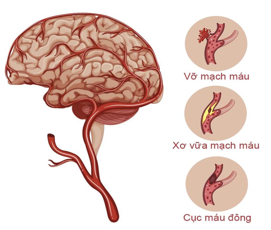 Cholesterol gây nên các tổn thương ở não bộ
