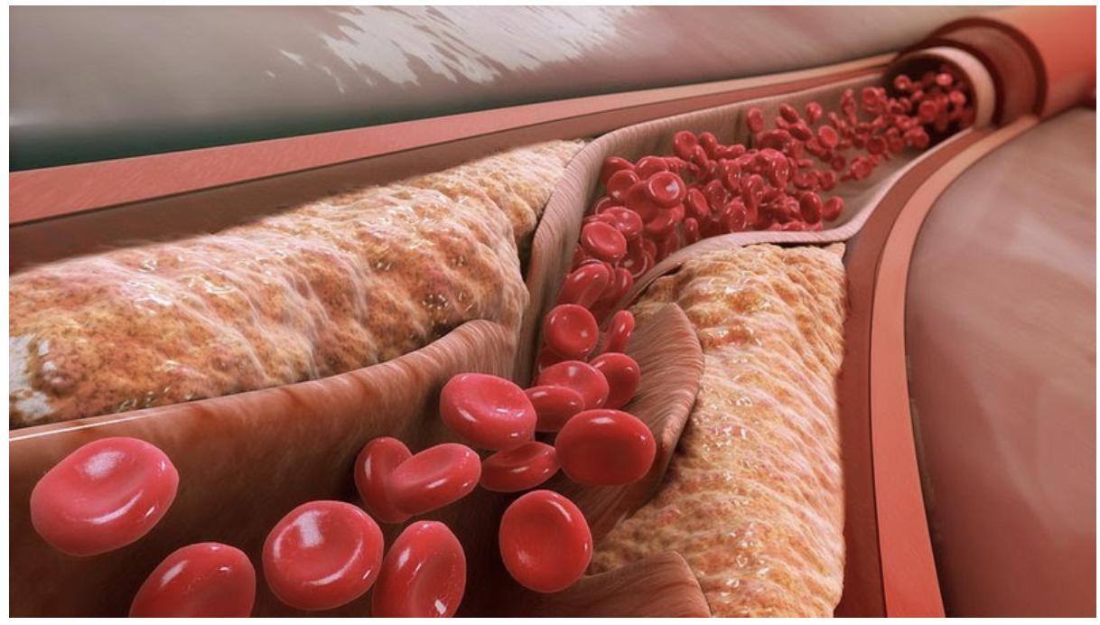 cholesterol-xau