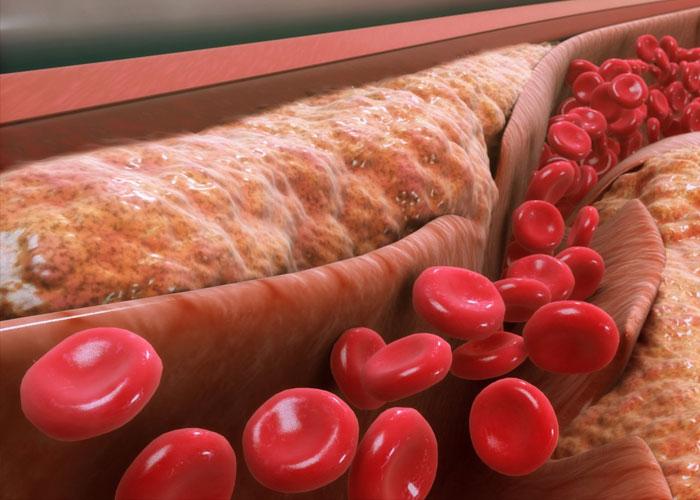 Duy trì mức cholesterol để tránh các bệnh