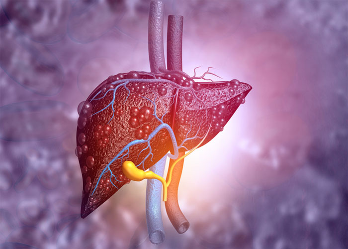 Gan nhiễm mỡ do lipid máu cao