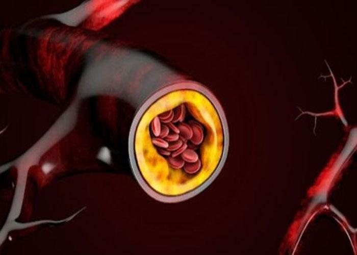 LDL là cholesterol xấu