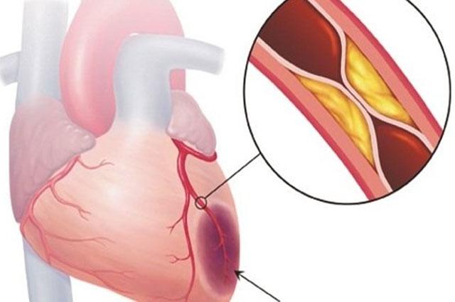 Bệnh mạch vành là nguyên nhân gây tử vong hàng đầu cho cả hai giới ở Hoa Kỳ