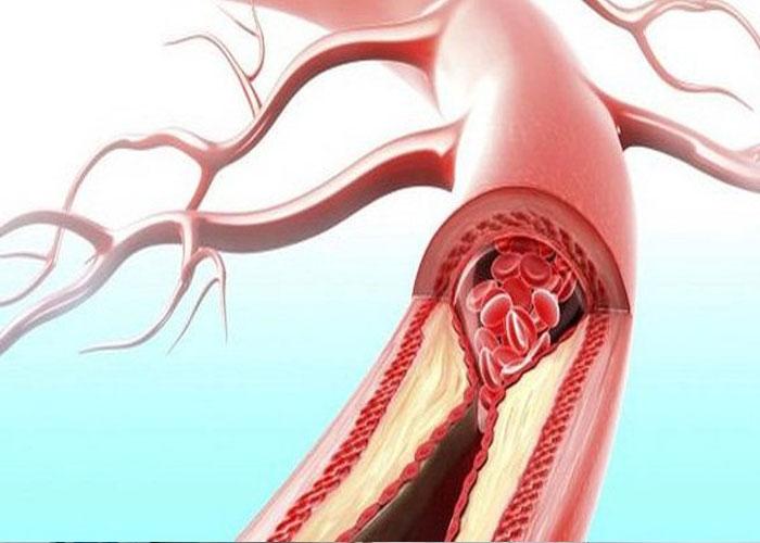 Mảng bám tiểu cầu làm tắc nghẽn mạch máu