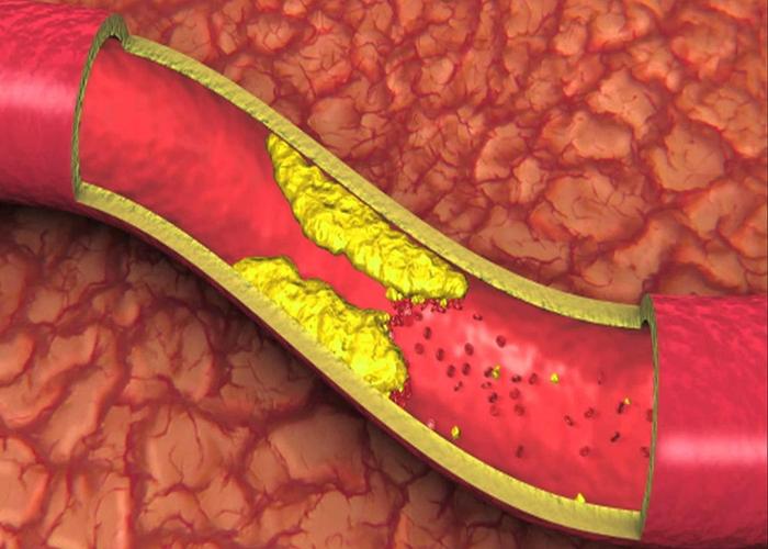 Bệnh mỡ máu (hay còn gọi là máu nhiễm mỡ, rối loạn chuyển hóa mỡ máu)