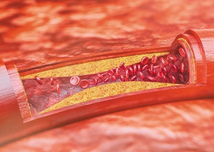 Xơ vữa động mạch thường không gây ra bất kỳ triệu chứng nào cho đến khi sự kiện xảy ra.